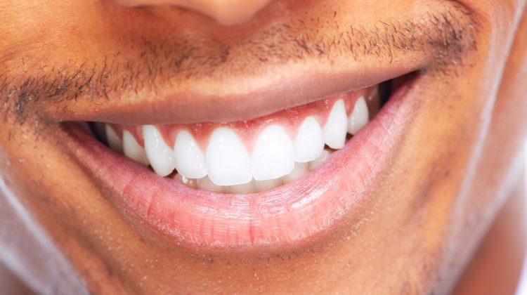 Zeramex Dentalpoint Zähne Zahnimplantate Keramikimplantate