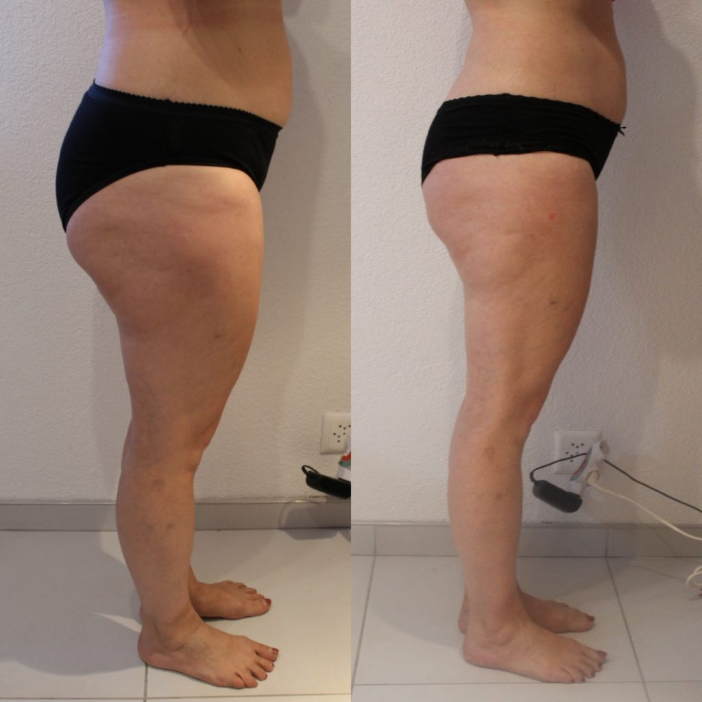 Maderotherapie AcuMax Cellulite Fettpolster Vorher Nacher worldofwellness z